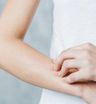 reaccion alergica piel acaros
